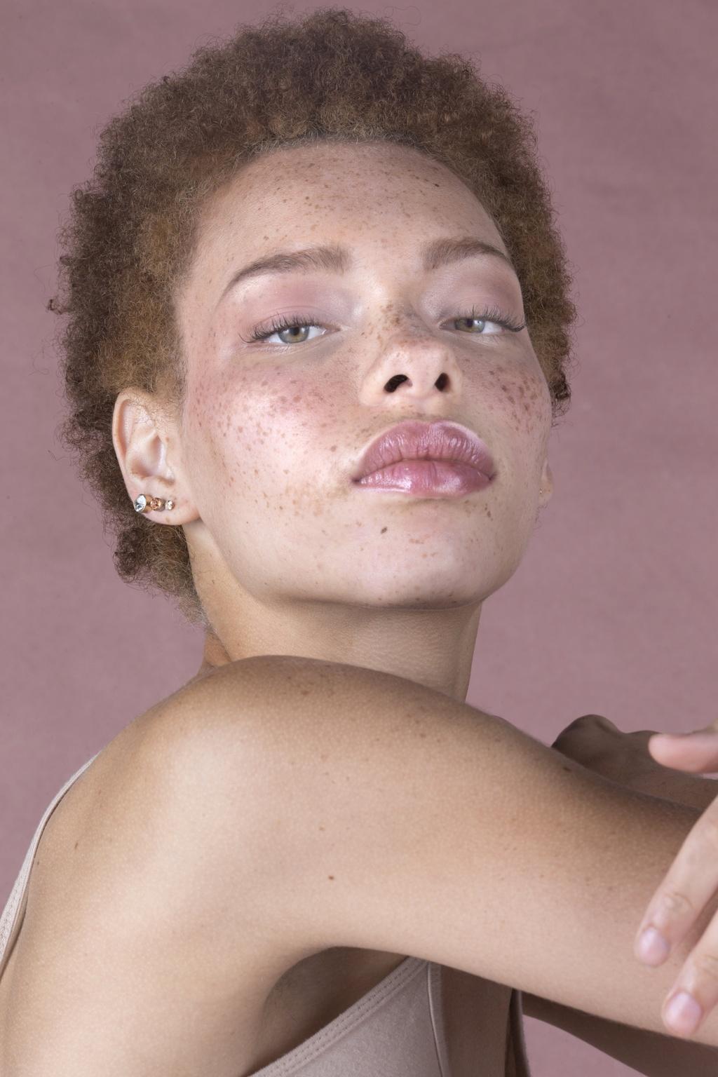 8 người mẫu nổi bật với gương mặt nhiều tàn nhang - ảnh 7