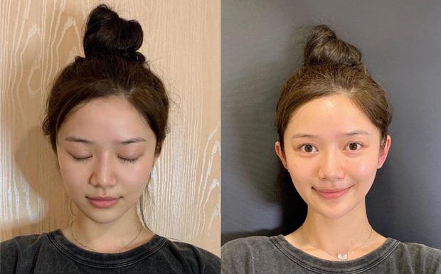 Cơn sốt phẫu thuật tai nhọn hoắt nguy hiểm của giới trẻ Trung Quốc - ảnh 10
