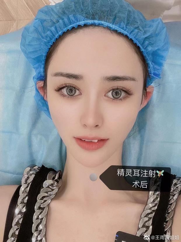 Cơn sốt phẫu thuật tai nhọn hoắt nguy hiểm của giới trẻ Trung Quốc - ảnh 3