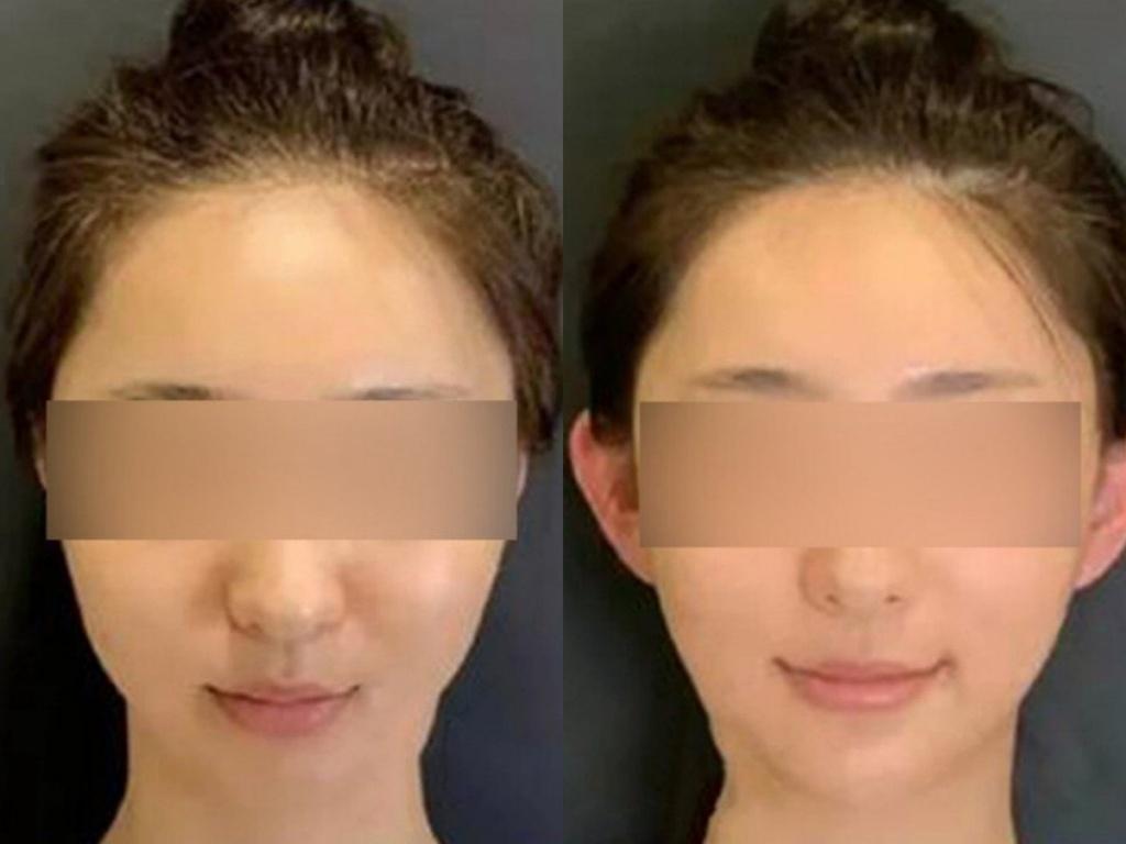 Cơn sốt phẫu thuật tai nhọn hoắt nguy hiểm của giới trẻ Trung Quốc - ảnh 1