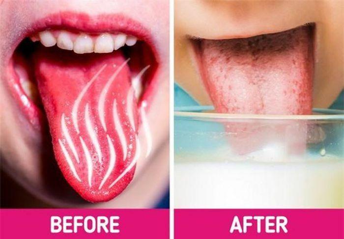 Lưỡi bị bỏng rát khi ăn đồ quá nóng cứ làm theo cách này là khỏi ngay tức khắc - ảnh 1