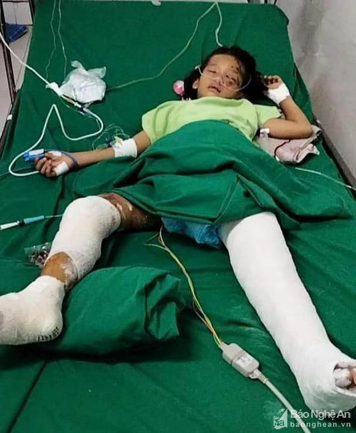Cháu gái 8 tuổi bị cổng sắt nhà văn hóa bất ngờ đổ ập đè gãy hai chân - ảnh 3