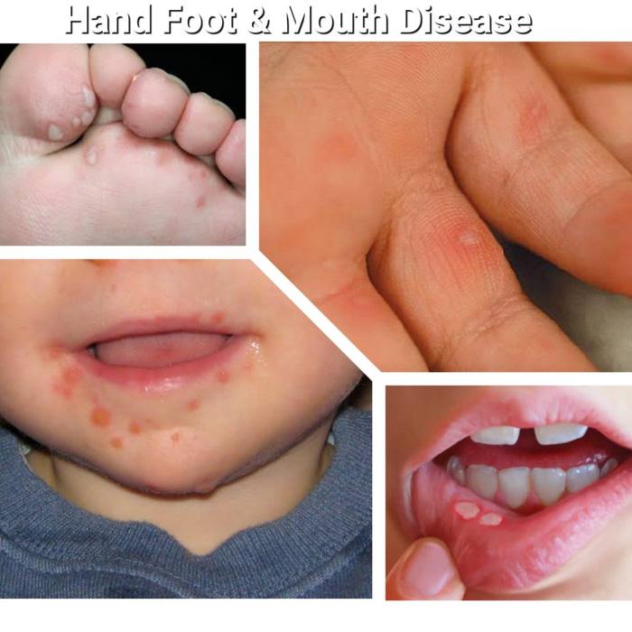 Nhiều bệnh viện quận, huyện ở TP.HCM bắt đầu tiêm ngừa vắc xin phòng COVID-19 đợt 5 - ảnh 3