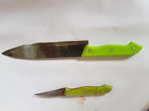 2 cán bộ Công an bị thương khi khống chế kẻ 'ngáo đá' có dao - ảnh 2