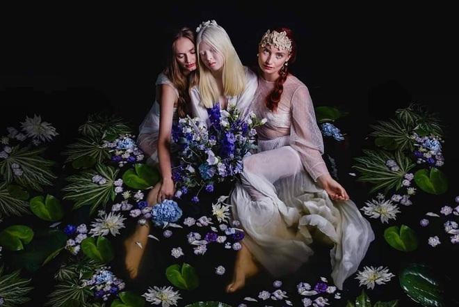 Cô gái bạch tạng từng bị cha mẹ bỏ rơi, trở thành người mẫu tạp chí Vogue - ảnh 1