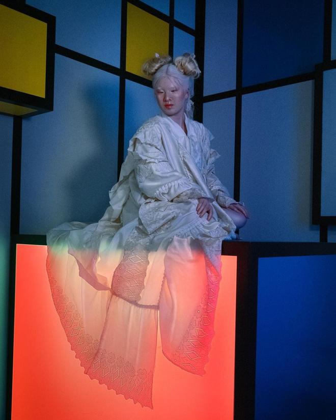 Cô gái bạch tạng từng bị cha mẹ bỏ rơi, trở thành người mẫu tạp chí Vogue - ảnh 7