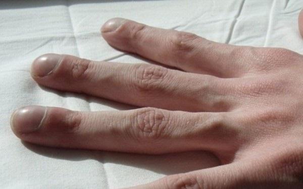 4 triệu chứng trên ngón tay cho thấy chất độc trong cơ thể đang bùng phát: Đi khám gan, phổi ngay kẻo muộn - ảnh 1