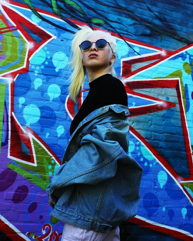 Cô gái bạch tạng từng bị cha mẹ bỏ rơi, trở thành người mẫu tạp chí Vogue - ảnh 3