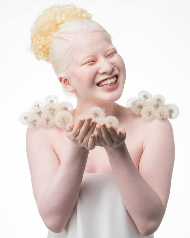 Cô gái bạch tạng từng bị cha mẹ bỏ rơi, trở thành người mẫu tạp chí Vogue - ảnh 5