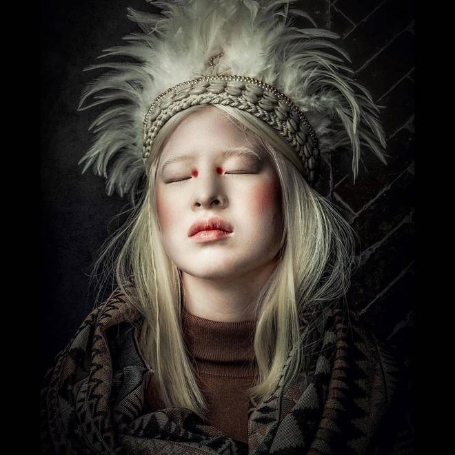 Cô gái bạch tạng từng bị cha mẹ bỏ rơi, trở thành người mẫu tạp chí Vogue - ảnh 6