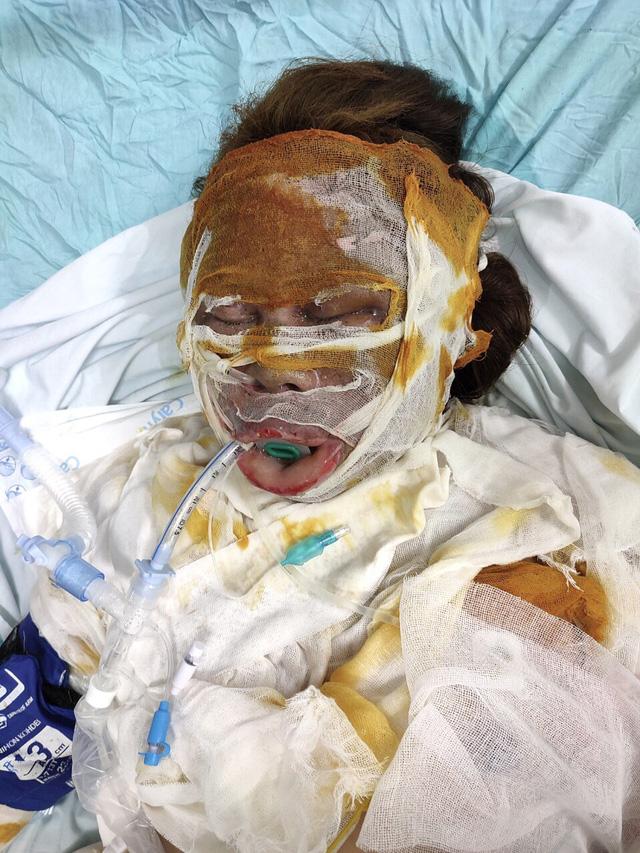 Xót xa mẹ nguy kịch vì bỏng nặng, hai con nhỏ không người chăm sóc phải gửi hàng xóm - ảnh 2