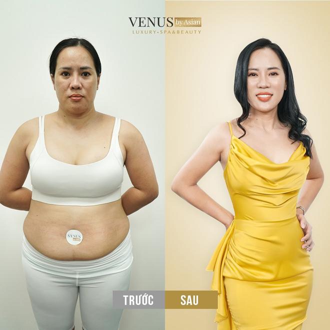 Chuyển giao công nghệ giảm béo đa tầng MaxBurning tại Phòng khám thẩm mỹ Venus by Asian - ảnh 3