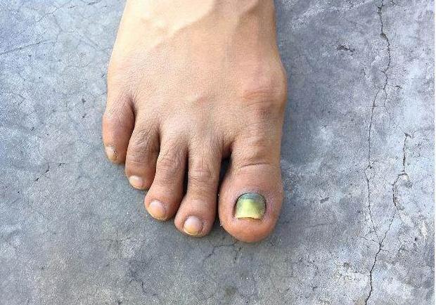3 bất thường ở ngón chân đang cảnh báo bạn rằng tế bào ung thư đã bắt đầu thức dậy, cần đi khám ngay - ảnh 2