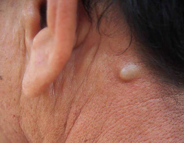 3 thay đổi trên cổ có thể là dấu hiệu sớm của bệnh ung thư mà bạn không nên chủ quan bỏ qua - ảnh 3