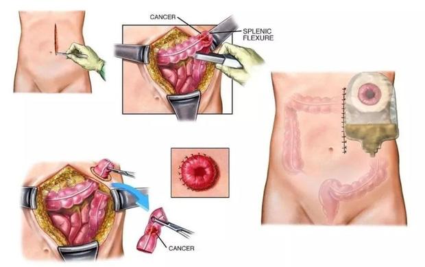 Người đàn ông phải cắt bỏ hậu môn do ung thư trực tràng, nguyên nhân xuất phát từ thói quen sinh hoạt xấu mà nhiều người trẻ mắc phải - ảnh 3