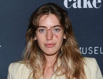 Nữ diễn viên lành vết thương sau khi bị chó tấn công