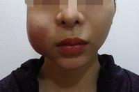 Cấp cứu mùa dịch: người hoại tử mặt, kẻ thủng mũi vì làm đẹp tại spa