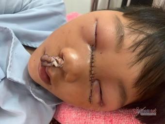 Cậu bé bị mẹ chém đứt tuyến lệ được ủng hộ 350 triệu đồng