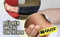 Quiz: Nếu có 4 biểu hiện bất thường sau trên da thì 80% đó là biểu hiện cho thấy ung thư gan đã bắt đầu ghé thăm