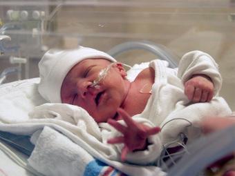 Bệnh viêm phổi thường gặp ở trẻ sơ sinh rất dễ gây tử vong và những dấu hiệu cha mẹ đặc biệt lưu ý