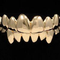 Chris Brown phủ kín 28 chiếc răng bằng vàng