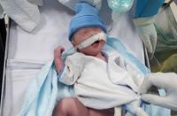 Em bé chào đời khỏe mạnh khi mẹ mắc Covid-19 bị suy hô hấp