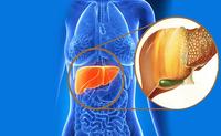 6 nhóm đồ ăn làm cho gan nhiễm mỡ nặng nề hơn