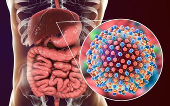 Triệu chứng men gan cao thường gặp ở bệnh nhân