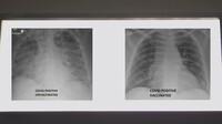 Bác sĩ Mỹ tiết lộ 1 điểm khác biệt đầy kinh ngạc khi so sánh ảnh chụp phổi bệnh nhân COVID-19 đã tiêm và chưa tiêm vaccine