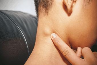 Triệu chứng của u lympho không Hodgkin