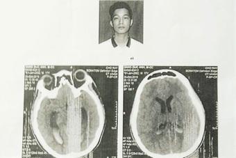 Khởi tố thêm 2 bị can vụ nam sinh bị đánh chấn thương não