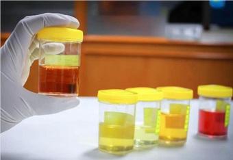 Nước tiểu vào buổi sáng tiết lộ thận tốt có hay không: Hãy đi kiểm tra thận ngay nếu nước tiểu của bạn có 3 đặc điểm bất thường này