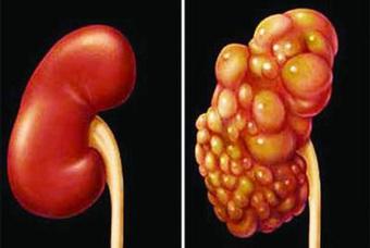 Ung thư thận: 60-80% bệnh nhân sống thêm 5 năm nếu phát hiện sớm