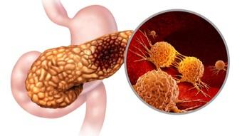 Các triệu chứng của ung thư tụy