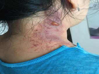 """Nhiều bệnh nhân Covid-19 tại TPHCM bị kiến ba khoang """"tấn công"""""""