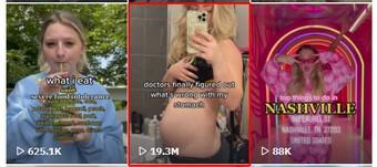 """Vô tình """"sưng bụng"""" vì mắc bệnh lạ, cô gái bỗng hóa hot girl triệu view khi quay lại quá trình điều trị"""
