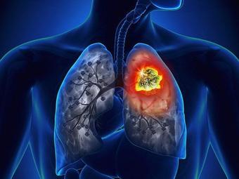 Đau vai- dấu hiệu ung thư phổi