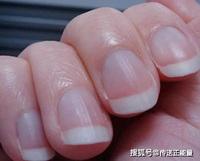 3 biểu hiện trên móng tay đang cảnh báo bạn bị thiếu máu, không phát hiện ra sớm để bồi bổ thì cơ thể sẽ sinh bệnh