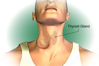 Ung thư tuyến giáp: Làm gì để hạn chế sẹo lồi sau mổ?