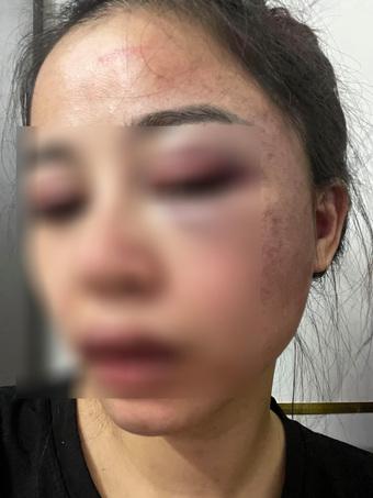 Vợ tố chồng bạo hành từ 23 giờ đêm đến 4 giờ sáng, gương mặt bị đánh tới biến dạng