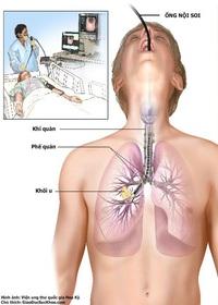 Có dấu hiệu nuốt nghẹn, làm sao để chẩn đoán ung thư thực quản
