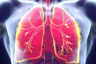 Ung thư phổi: Làm gì để giảm nguy cơ bệnh tiến triển hoặc tái phát?