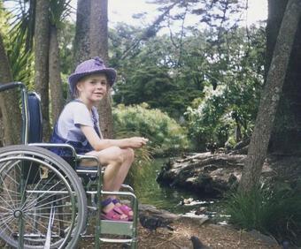Cô gái cụt chân trở thành mẫu nổi tiếng và câu chuyện truyền cảm hứng